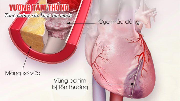 Bệnh tim mạch vành có thể dẫn tới nhồi máu cơ tim